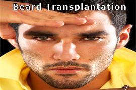 beard_hair_transplantation_1