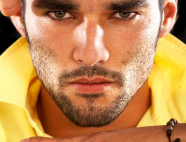 beard_transplantation