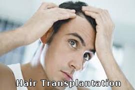 hair_transplantation_23